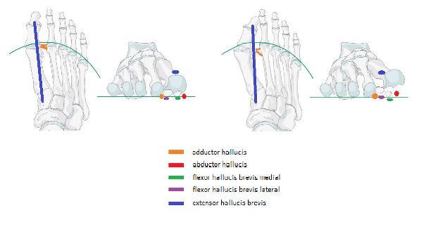 a ii. fokú kézkezelés deformáló artrózisa)
