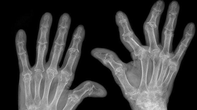 a második lábujj rheumatoid arthritis)