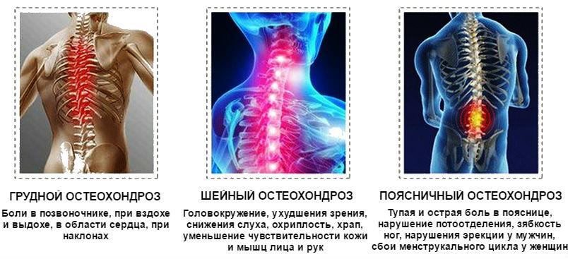 gyógyszerek gerincvelő csontritkuláshoz chondroxid don