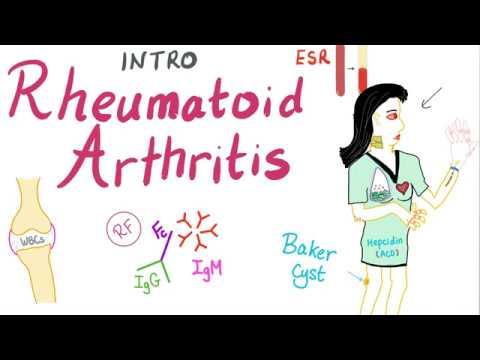 rheumatoid arthritis áttekintése hogyan kell kezelni