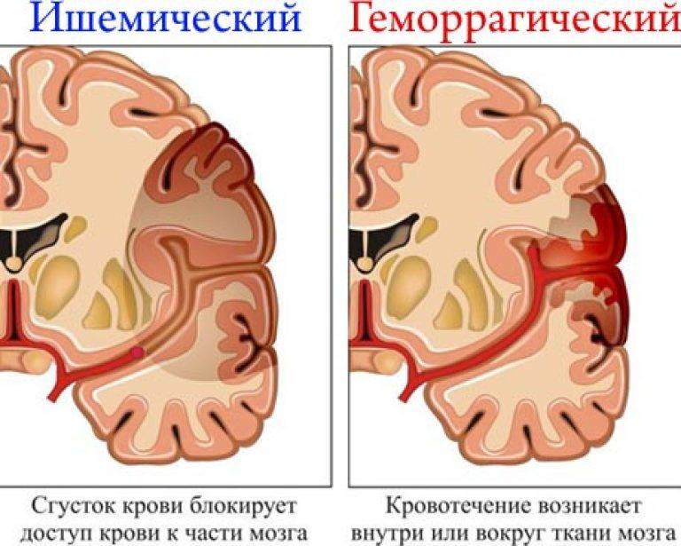közös helyreállítás stroke után)