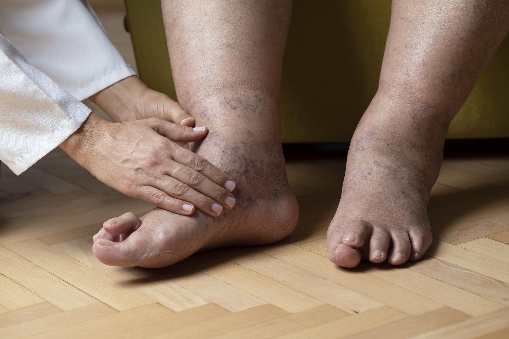 duzzadt láb kezelés artritisz artrózisos kezeléssel