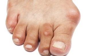 a lábujjak köszvényes izületi gyulladásának kezelése)