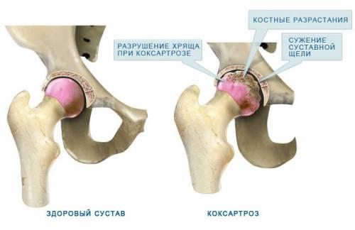 hogyan lehet kezelni a csípőízület coxarthrosisát 1 fokkal