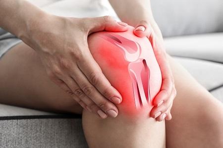 futó térd artritisz