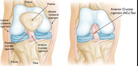 hogyan lehet csökkenteni a fájdalmat a térd artrózisával