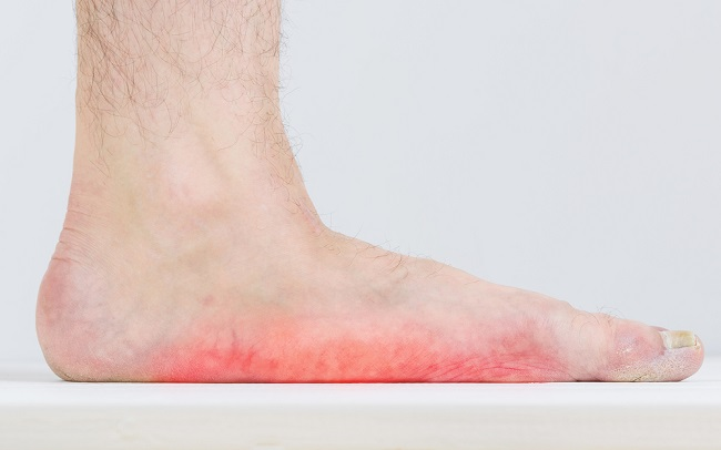 hogyan lehet enyhíteni a fájdalmat ízületi fájdalommal