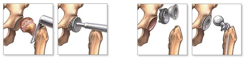 a könyökízületek deformáló artrózisa 1 fok)