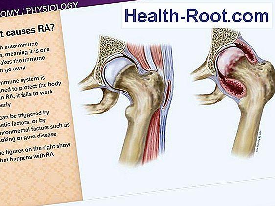 típusú artritisz lábujjak