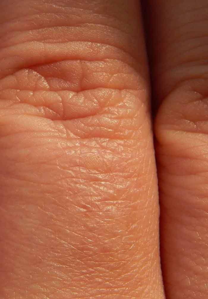rheumatoid arthritis early stages
