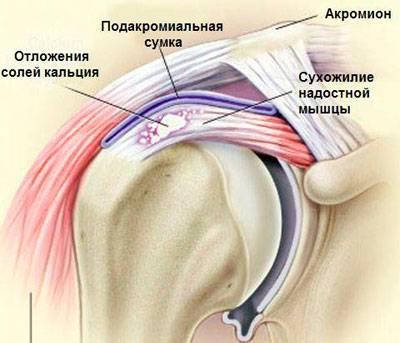 a vállízület ragasztásainak meszesedése fájdalom az endoprotetizálás után tb ízület
