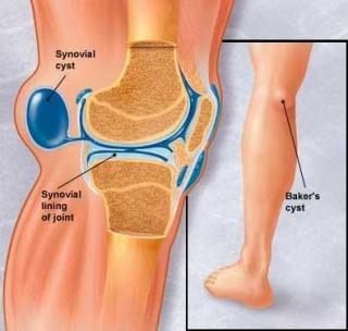 a térd artrózisával járó munka