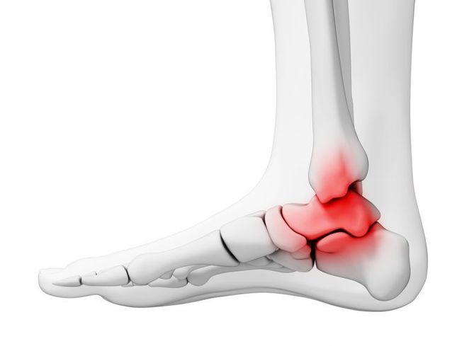fájdalom a bal láb ízületében járás közben eszközök osteochondrozis kezelésére