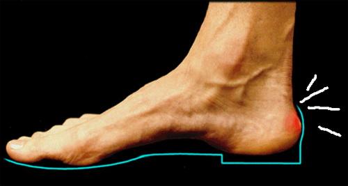 Achilles fájdalom