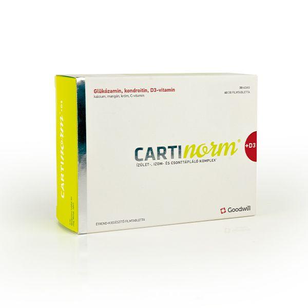 kondroitin-glükozamin költség)