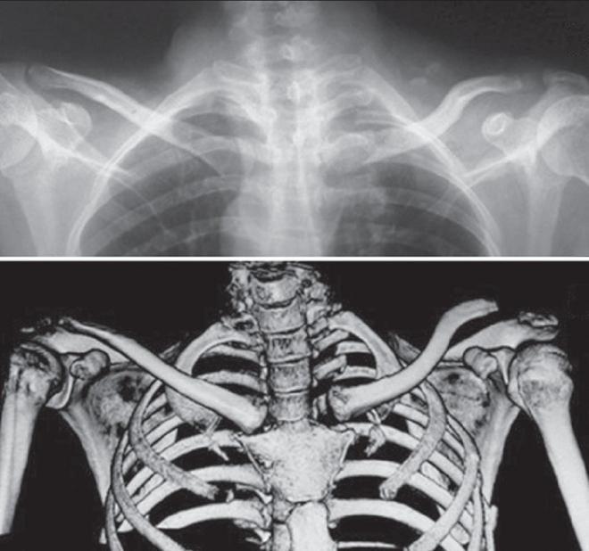 az ágyéki íves ízületek artrózisa