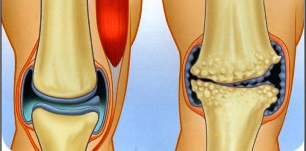 a boka és a láb deformáló artrózisa