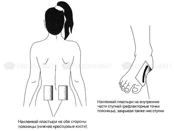 nanoplaszt ízületi fájdalmak kezelésére