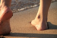 duzzadt láb gyógymódok terhesség alatt a térd kétoldalú gonartrózisa 2 fokos kezelés