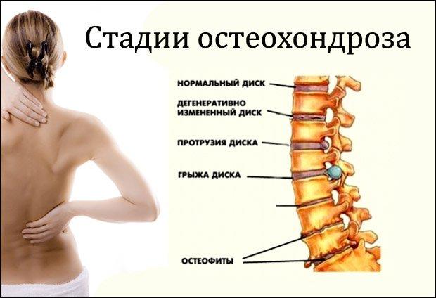 milyen kenőcsök segítik a mellkasi régió osteochondrozist