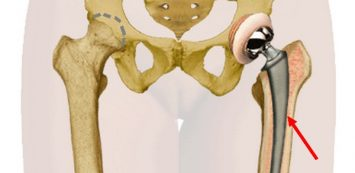 fáj a lábak és a csípő izületei