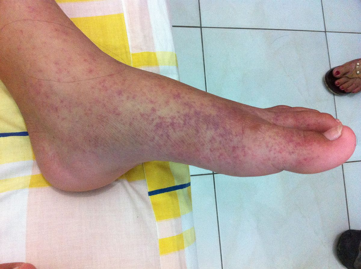 fájdalom a lábak ízületeiben 35 év)