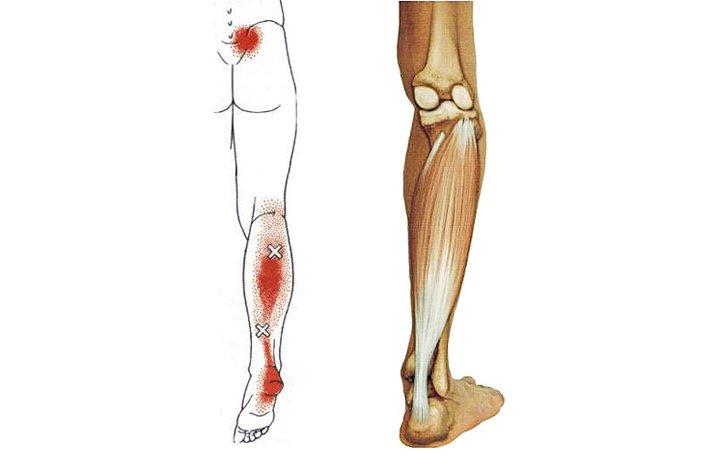 3. szakasz a térd artrózisa