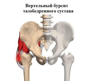 csinálni, ha a csípőízület fáj