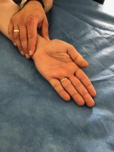 a hüvelykujj carpal-metacarpalis ízülete