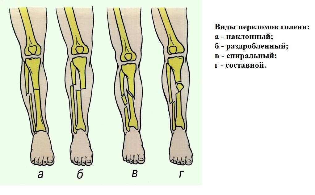 fájdalom a lábízületben keresztirányú lapos lábmal)