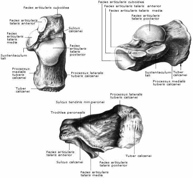 a szubtalaris ízület posztraumás artrózisa)