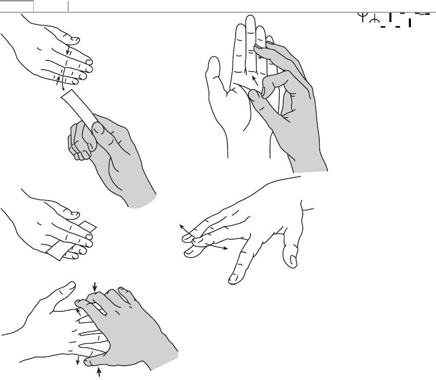 a kéz ízületeinek osteochondrosis