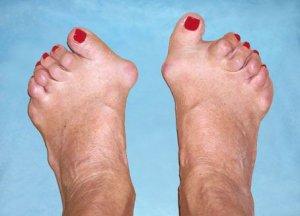 mi a betegség a lábak ízületeiben