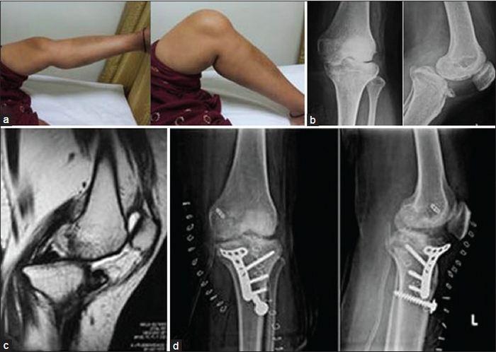 a láb elülső részének artrózisa kezelést okoz)