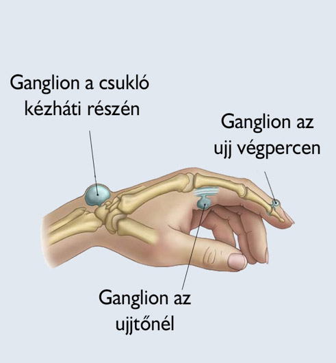 a csuklóízület artrózisának kezelése)