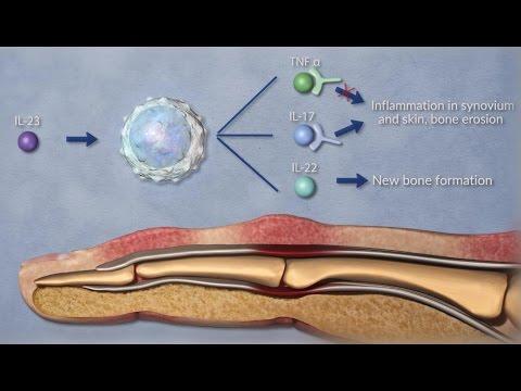 milyen eszköz az osteoarthritis kezelésére)