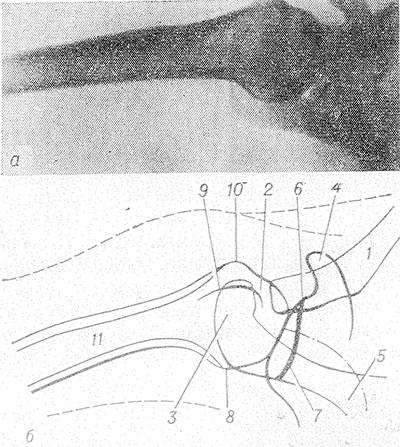 deformáló artrózisa a csípőről