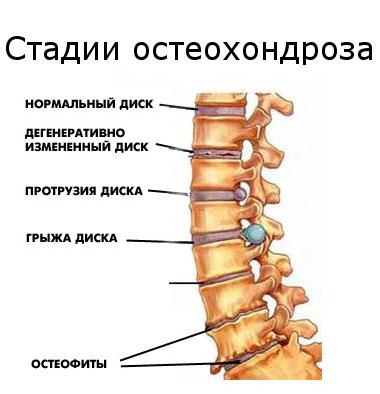 Osteochondrosis és menses - Masszázs -