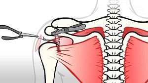 a vállízület kezelésének rotációs mandzsetta károsodása hogyan kezeljük a térdízület szinovitist és bursitist