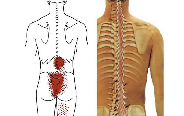 a láb elülső részének artrózisa kezelést okoz