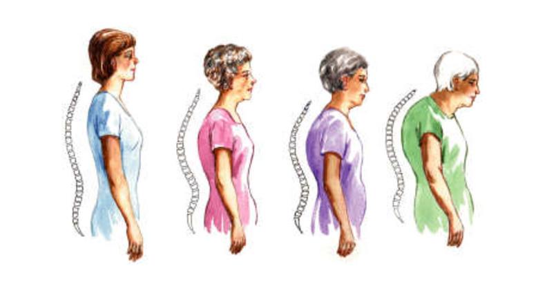 Mozgásszervi betegségek - artrózis, artritis, osteoporózis