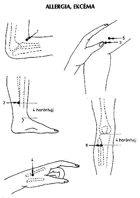 Hipochondriás neurózis (Hipochondriázis)