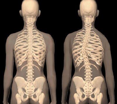 gerinc artrózis 3 fokos kezelés)