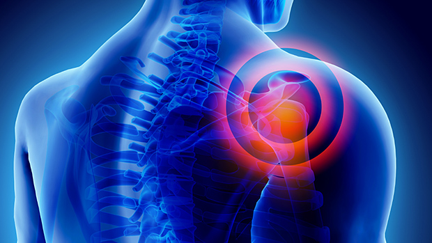 a vállízület kialakulása artrózis esetén)