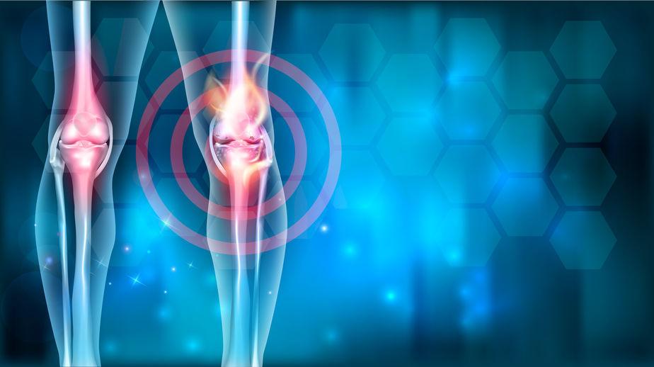 az artrózis bevált kezelése