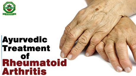 akik a rheumatoid arthritis kezelésére)