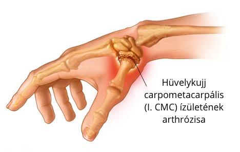 hüvelykujj a kézízületi fájdalom)