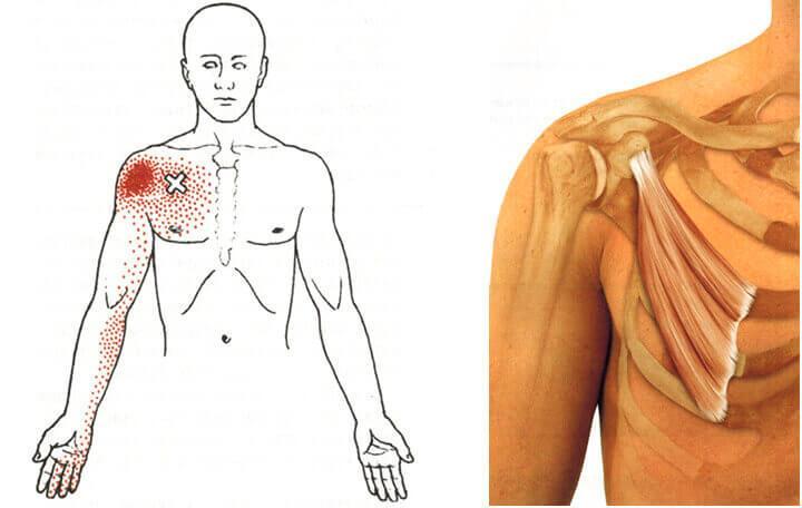 a vállízület kezelési klinikájának artrózisa)