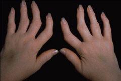 deformáló artrózis 2 fokos lábkezelés