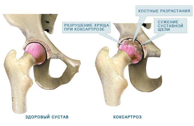 csípőízületek artrózisa 1 fok